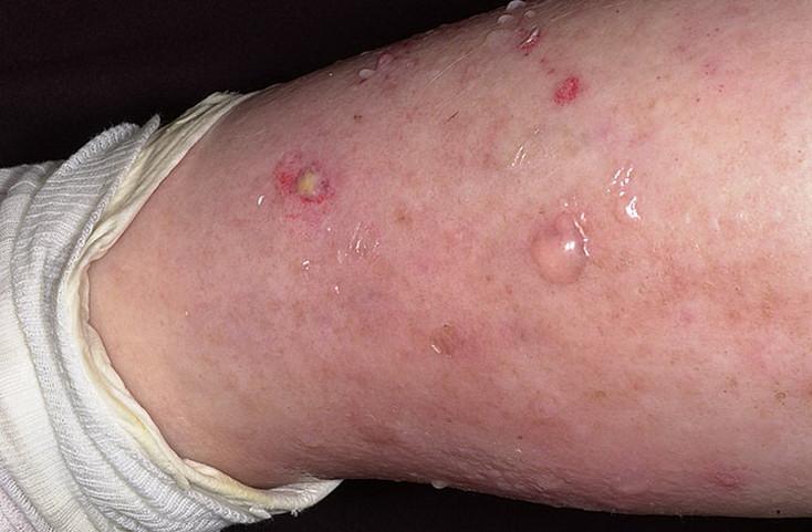 липидный некробиоз