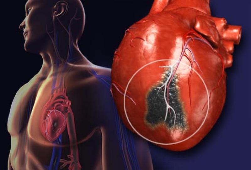 Поражение сердца при сахарном диабете: причини, симптоми, лечение