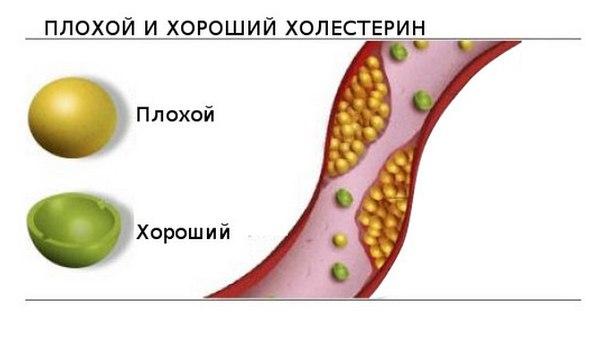 связь уровня холестерина и неинфекционных заболеваний