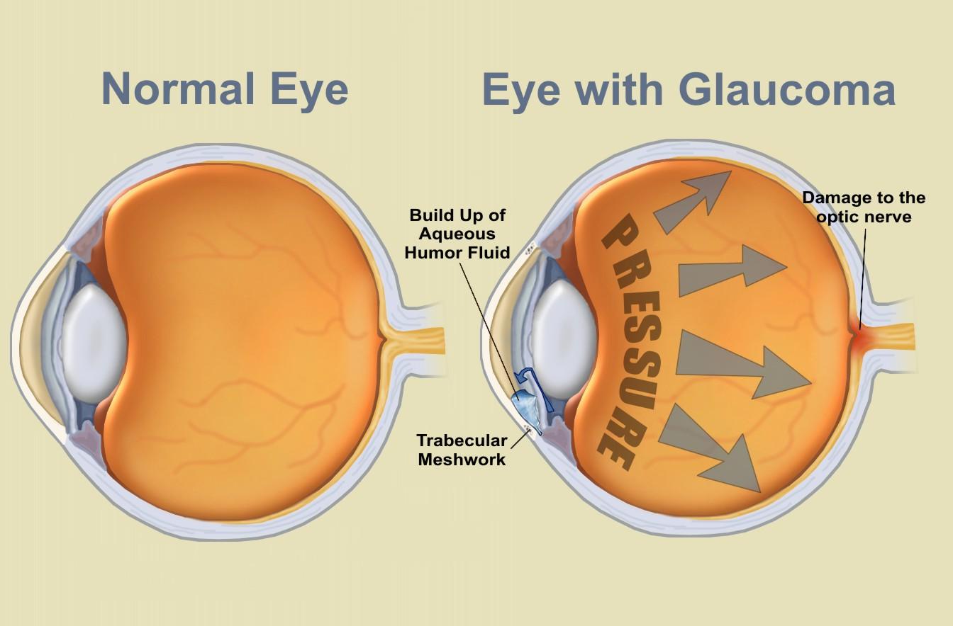 давление внутри глаза
