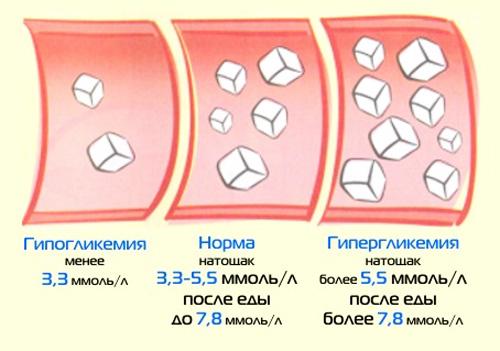 Аппараты для сахарный диабета