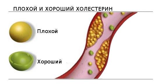Норма сахара и холестерина в крови: показатели, отклонения от стандарта