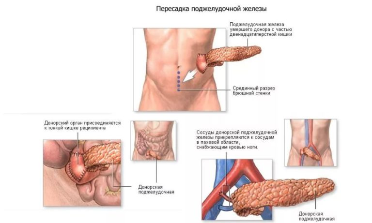 Можно ли пересадить поджелудочную железу