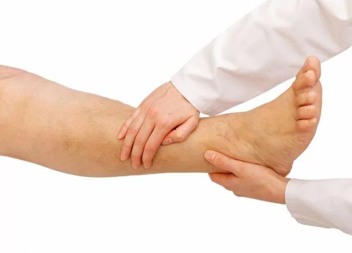 Массаж ног при лимфостазе видео