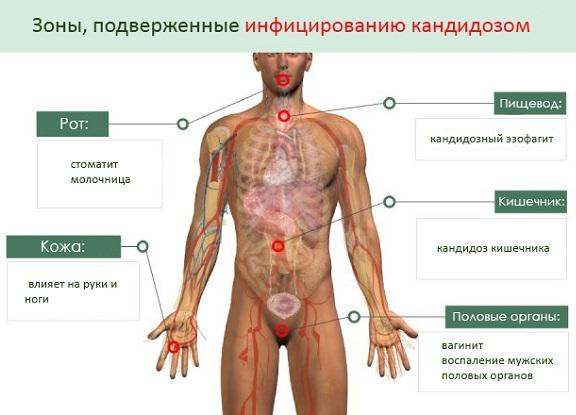 Ессентуки санатории лечение язвы