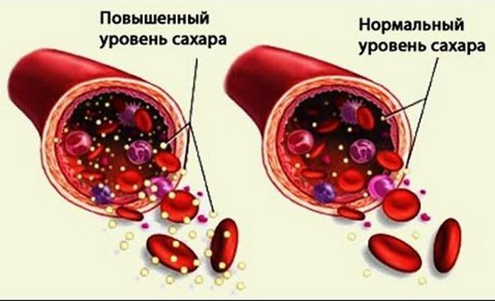 Симптомы повышенного сахара в организме