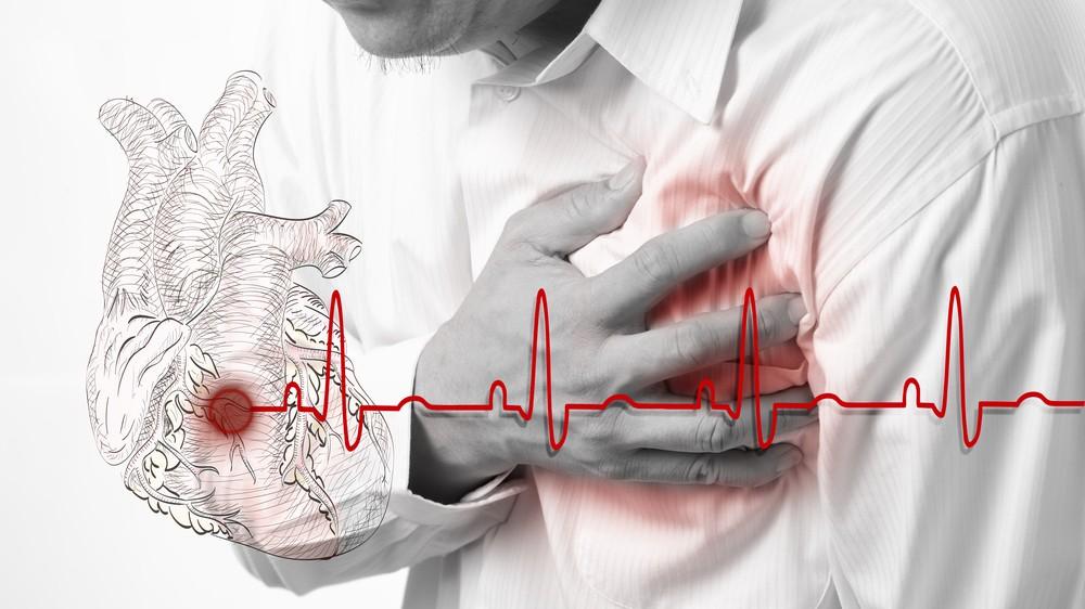 Кашель при инфаркте у больных сахарным диабетом