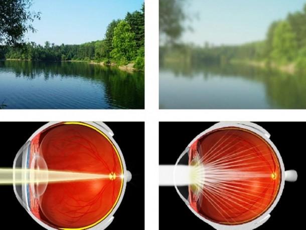 что видишь при катаракте