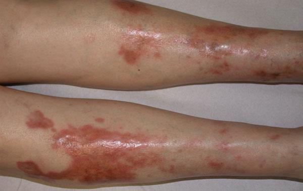 дерматопатия